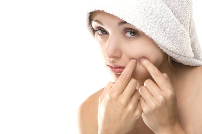 5 Ways To Remove Blackheads Naturally... Without Scarring Your Face!